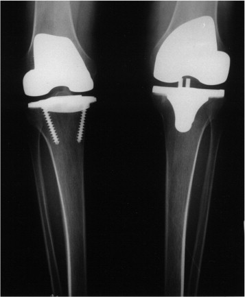 medial pivot knee prothesis The medial pivot knee-type implant in this series provided pain relief, functional improvement and a revision rate, similar to what is reported in the literature after a longer follow-up period, which is reassuring for those who use this type of implant on a day-to-day basis.