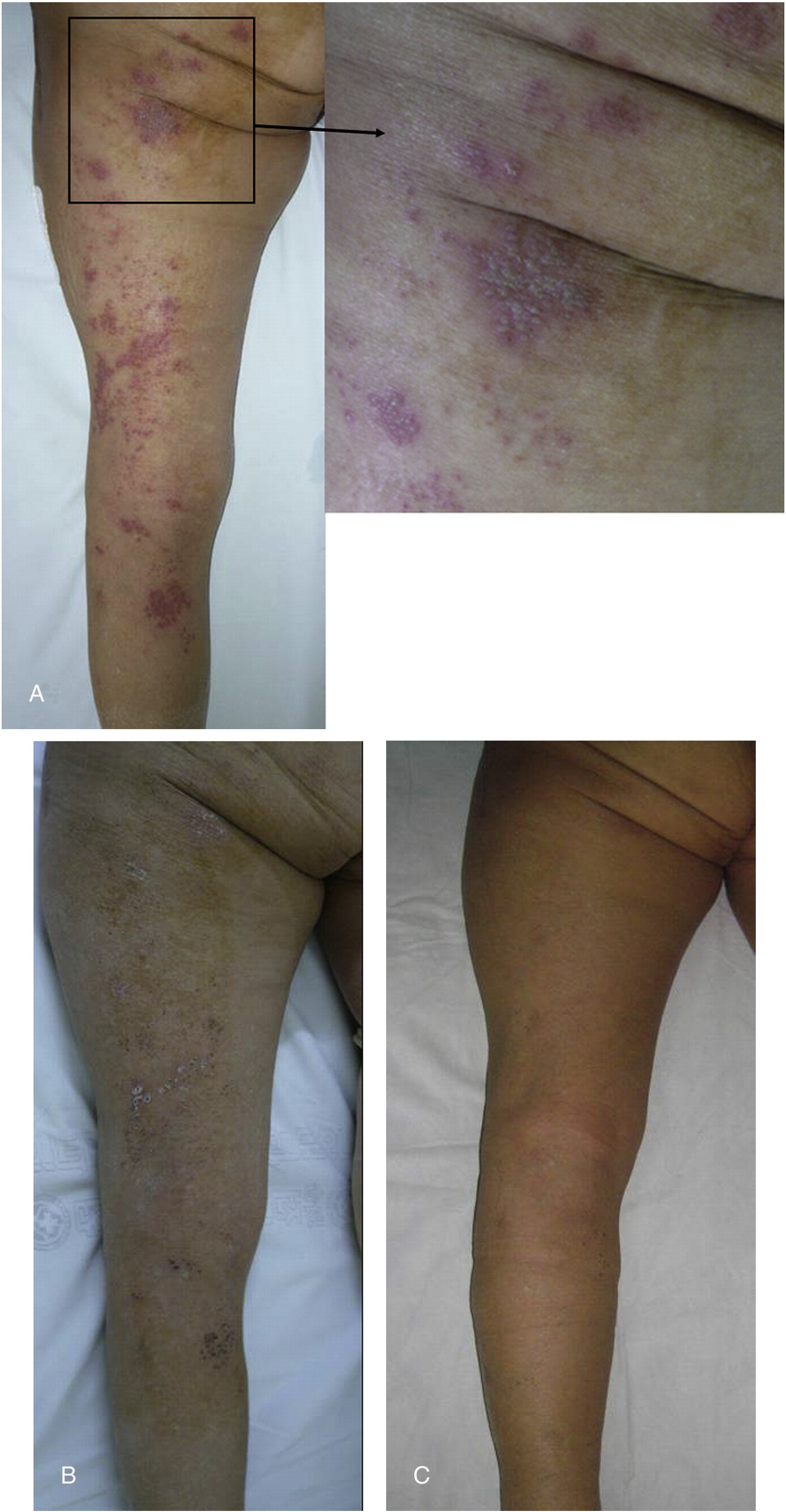 Acute Postoperative Herpes Zoster With A Sciatic Nerve