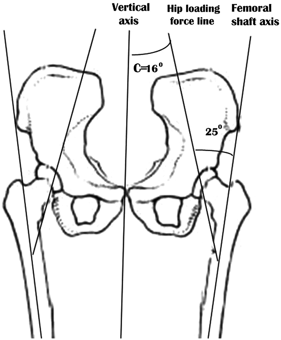effect of pelvic obliquity on the orientation of the