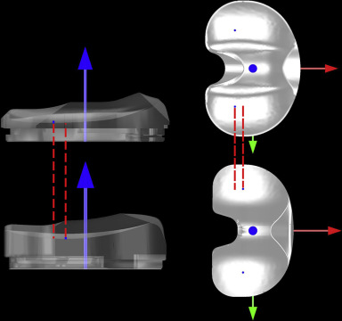 References in single versus multiple radii cruciate for Grieco mobili